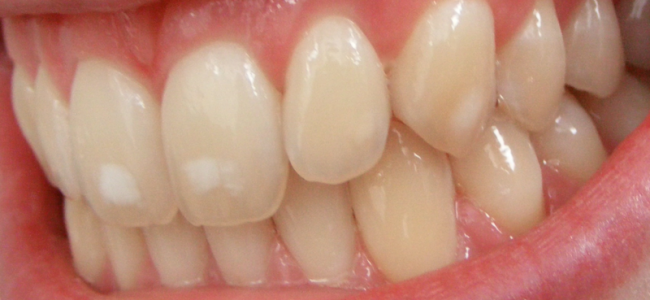 Quelles sont les habitudes qui causent le jaunissement de nos dents?